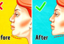 Move Your Body: The Fat On The Face #Doublechin